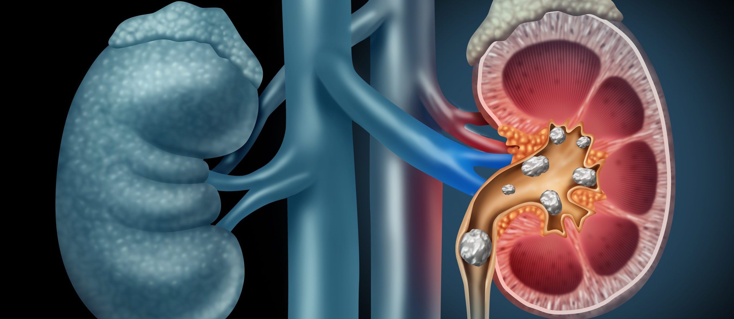 Human Kidney stones medical concept as an organ with painful crystaline mineral formations as a medicine symbol with a cross section with 3D illustration elements.